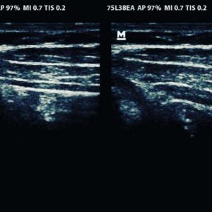 Auf dem Ultraschallbild erkennt man deutlich dir drei Schichten meiner Bauchmuskulatur