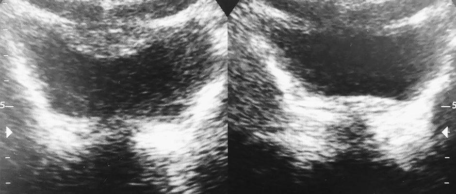 Ultraschall Beckenbodenanalyse