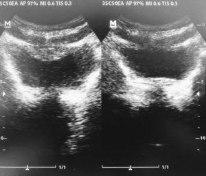 Auf dem Ultraschallbild erkennt man deutlich die drei Schichten meiner Bauchmuskulatur im Vergleich: links entspannt, rechts angespannt